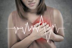 Ataque del corazón fotos de archivo libres de regalías