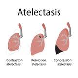 Atelectasia ilustração stock