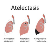 Atelectasis. Vector illustration of lung disease Stock Image