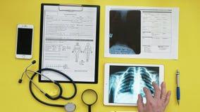 Atención sanitaria y concepto médico Imagen de la radiografía en la pantalla de una tableta digital Opinión de sobremesa médica almacen de metraje de vídeo