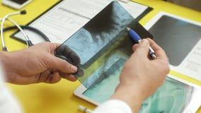 Atención sanitaria y concepto médico Imagen de la radiografía en la pantalla de una tableta digital Vista lateral de la tabla méd almacen de metraje de vídeo