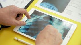 Atención sanitaria y concepto médico Imagen de la radiografía en la pantalla de una tableta digital Vista lateral de la tabla méd metrajes