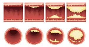 Ateriosclerosis illustrazione vettoriale