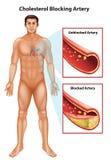 Ateriosclerosis Stock Image