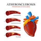 Ateroesclerosis, formación del coágulo de sangre Ejemplo médico del vector Imagen de archivo libre de regalías