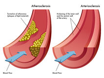 Ateroesclerosis y arteriosclerasis libre illustration