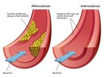 Ateroesclerosis y arteriosclerasis Imágenes de archivo libres de regalías