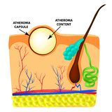 Atheroma structure. The structure of moles on the skin. Infographics. Vector illustration on isolated background. royalty free illustration