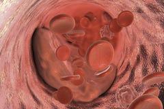 Atheromaplaque binnen slagader stock illustratie