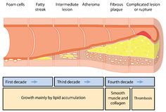 Atheromavorming stock illustratie