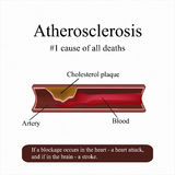 atherosclerose Met hoog cholesterolgehalte in het bloed Stagnatie van een slagader Vector illustratie stock illustratie