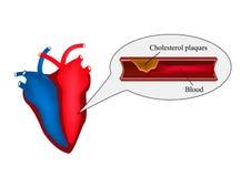 Atherosclerose van het hart Angina pectoris Hartkwaal De dag van het wereldhart Vectorillustratie op geïsoleerde achtergrond vector illustratie