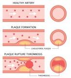 Atherosclerosestadia: gezonde slagader, plaque-vorming, en trombose in vlakke die stijl op witte achtergrond wordt geïsoleerd Gez vector illustratie