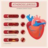 Atherosclerosestadien Kreislaufsystem-Vektor des Herzanschlagthrombusangriffsbluts medizinisches infographics vektor abbildung