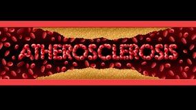Atherosclerosis ιατρικό σύμβολο Στοκ εικόνες με δικαίωμα ελεύθερης χρήσης