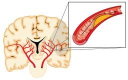Atherosclerosis και κτύπημα Στοκ φωτογραφίες με δικαίωμα ελεύθερης χρήσης