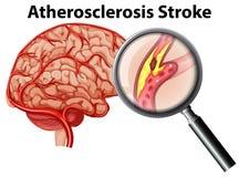 Atherosclerosis κτύπημα στο άσπρο υπόβαθρο Απεικόνιση αποθεμάτων