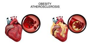 Atherosclerosis σκάφη της καρδιάς Στοκ εικόνες με δικαίωμα ελεύθερης χρήσης