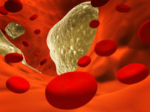 Atherosclerosis. Clogged artery and erythrocytes Stock Images