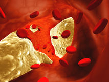 Atherosclerosis. Clogged artery and erythrocytes Stock Photography