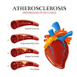 Atherosclerosis, blood clot formation. Vector medical illustration Royalty Free Stock Image