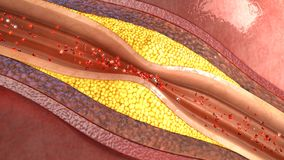 Atherosclerosis Royalty Free Stock Photography