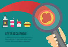 Atherosclerosis flat illustration. Atherosclerosis risk factors and causes. Stock Photo