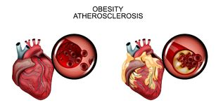 Atherosclerosis naczynia serce Obrazy Royalty Free