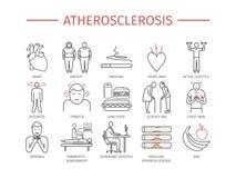 atherosclerosis Objawy, traktowanie Kreskowe ikony ustawiać Wektorowi znaki Zdjęcia Royalty Free