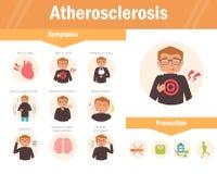 atherosclerosis objawy wektor ilustracji