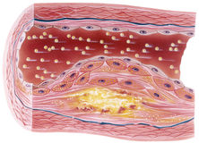 Atherosclerosis - Plaque. Vascular atherosclerosis showing a cutaway view of accumulated plaque in an afflicted blood vessel Royalty Free Stock Images