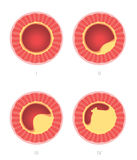 Atherosclerosis stages in artery Royalty Free Stock Image