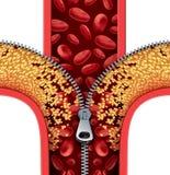 Atherosclerosis terapia Zdjęcie Royalty Free