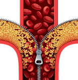 Atherosclerosis Therapy. Cleaning arteries concept as a zipper opening up plaque buildup in a blocked artery as a symbol of medical treatment cleaning clogged Royalty Free Stock Photo