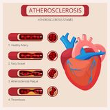 Atherosclerosis στάδια Thrombus κτυπημάτων καρδιών διανυσματικό ιατρικό infographics κυκλοφοριακών συστημάτων αίματος επίθεσης διανυσματική απεικόνιση