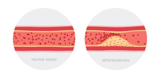 Atherosclerosis in vessels. Healthy and atherosclerosis vessels with blood cells vector illustration Stock Photos