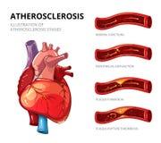 atherosclerosis Włókienna plakiety formacja wektor Obrazy Stock