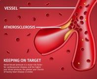 Atherosclerotic Banner van de Schepen Medische Ziekte royalty-vrije illustratie