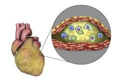 Atherosclerotic plaque in coronair bloedvat van zwaarlijvig hart, illustratie royalty-vrije illustratie