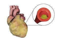 Atherosclerotic plaque in coronair bloedvat van zwaarlijvig hart, illustratie stock illustratie