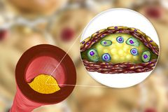 Atherosclerotic plaque in menselijke slagader royalty-vrije illustratie