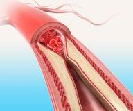 Athersclerosis в артерии Стоковые Фото