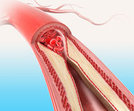 Athersclerosis in arteria Fotografie Stock