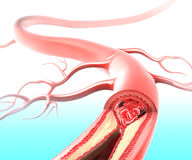 Athersclerosis in artery. 3D art illustration of anatomy of Atherosclerosis in artery due to cholesterol plaque Royalty Free Stock Photos