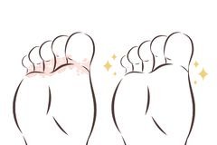 Close up of Athlete foot. Athlete foot with peeling skin before and after treatment stock illustration