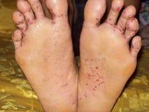 Athlete`s foot disease. Dermatitis on foot, fungi on feet Stock Photos