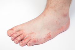 Athlete's foot fungi. Dermatitis on foot, athlete's foot disease Royalty Free Stock Images