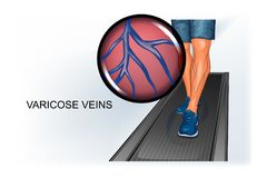 Athlete`s foot, suffering from varicose veins. Vector illustration of athlete`s foot suffering from varicose veins Stock Photo
