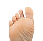Athlete's foot,  Tinea pedis Royalty Free Stock Photos