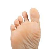 Athlete's foot,  Tinea pedis. One foot on a white background, Athlete's foot,  Tinea pedis Royalty Free Stock Photos